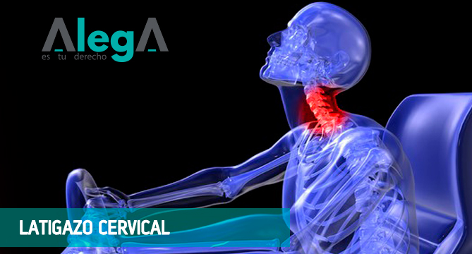 indemnización por latigazo cervical - Grupo AlegA